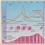 Dysménorrhées et kystes ovariens