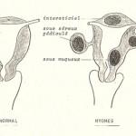 Fibromes et polypes
