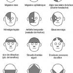 Migraines et céphalées