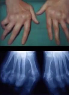 Polyarthrite rhumatoïde - Médecine intégrée