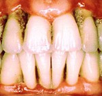 Parodontites / Parodontoses