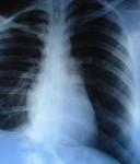 Bronchites aiguës / Pneumonie