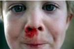 Epistaxis de l'enfant