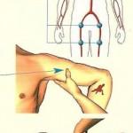 Les saignements / hémorragies