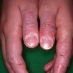 les dermites de contact