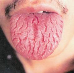 homeopathie langue chargée
