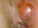 Fistule anale