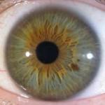 L'iridologie