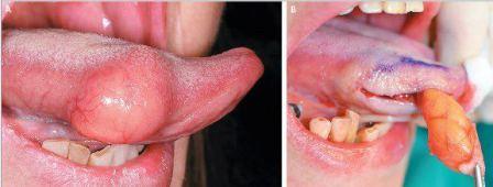 Sensation de brlure du pnis - Symptmes et Traitement