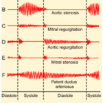 Le système cardiovasculaire : les vaisseaux sanguins (MARIEB ch.19)