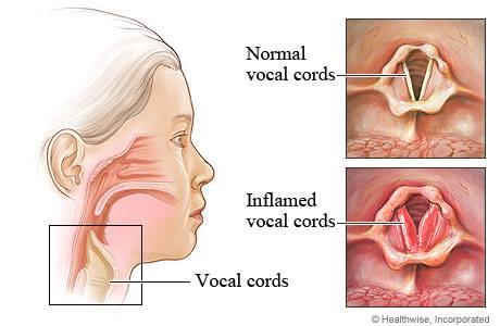 CordesVocales