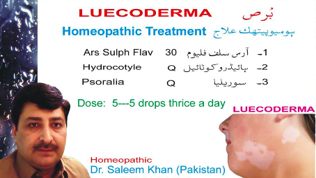 Leucodermie