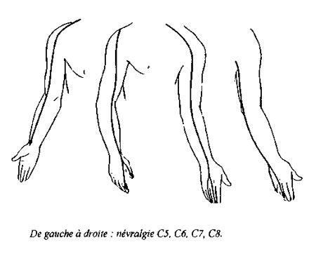 Syndromes-peripheriques-2