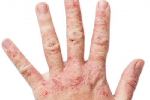 eczema-mains