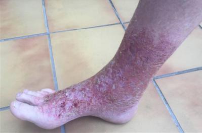 ulcere tropicale în varicoză